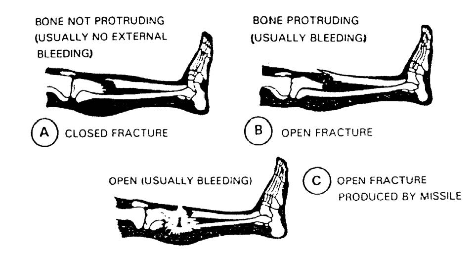 1 5 Closed And Open Fractures