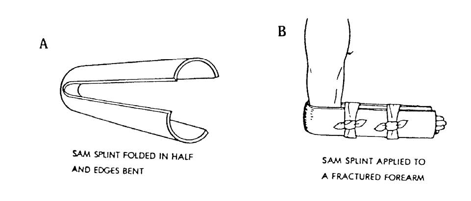 how to apply a sam splint Apply a sam splint to a fractured limb splint a suspected fracture identify and treat cold weather injuries treat fractures treat a choking casualty apply a dressing to an open chest wound apply different dressings.