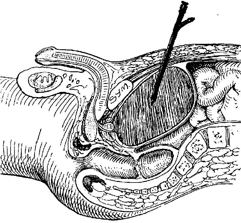 Vesicostomy Cystostomy; Suprapubic...